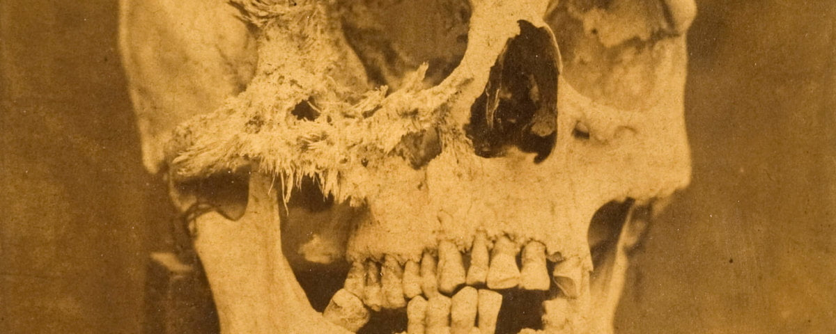 Skull with bone cancer