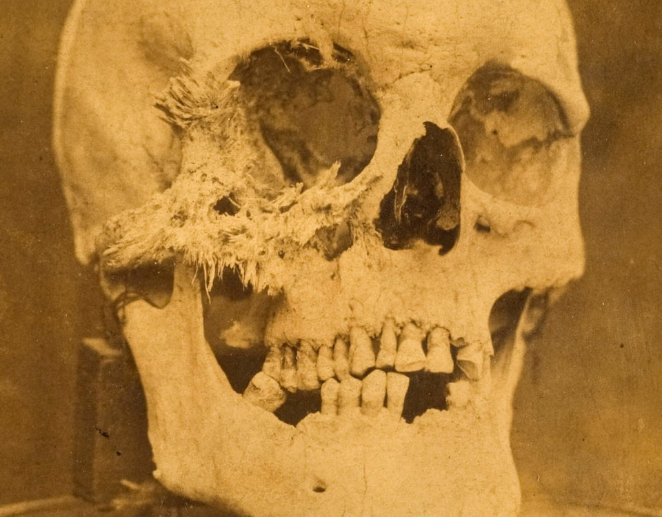 Skull with bone cancer